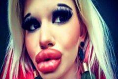 Она уже увеличила свои губы в 15 раз всего за 1 год. 22-летняя девушка заявила, что не собирается останавливаться на этом.